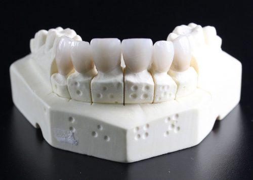 Novas tecnologias dos implantes dentários